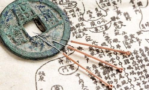 Få det bedre med akupunktur