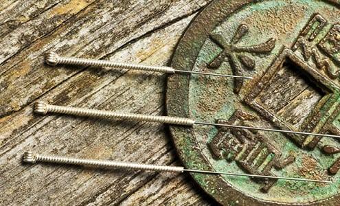 Apunkt akupunktur mod mavesår