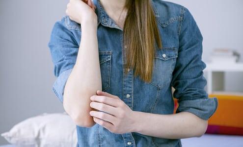 Apunkt akupunktur mod eksem
