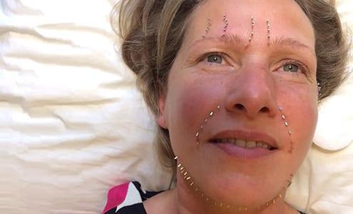 Ansigtløft med akupunktur hos Apunkt